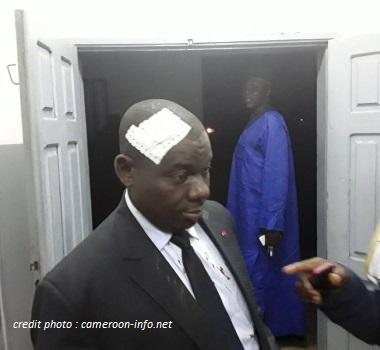 CAMEROUN : LE DISCOURS DE TOMAINO NDAM NJOYA, L'INTREPRIDE MAIRE DE FOUMBAN.